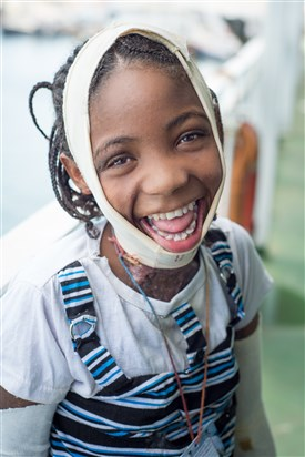 Girl with burns and bandages flashes a huge smile at the camera